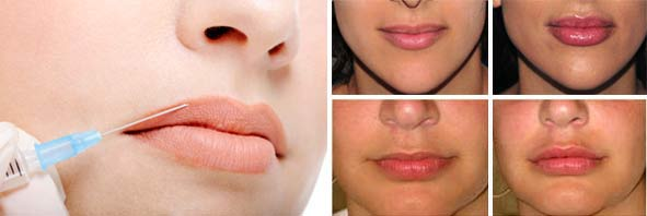 Гели для увеличения объема губ