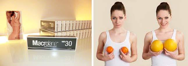 Гель Макролайн для увеличения груди