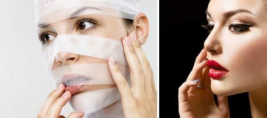 Биополимерный гель в губы – какие последствия