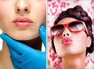 Увеличение губ биополимерным гелем