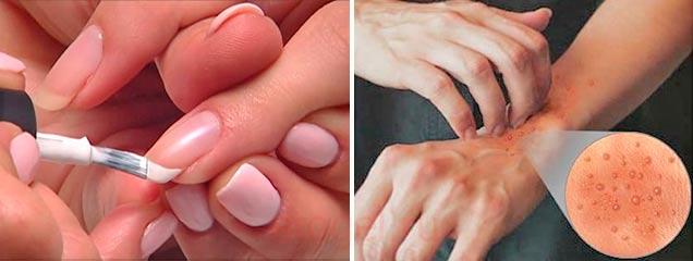 Какие могут быть симптомы аллергии на гель лак