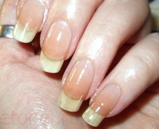 Ремонт натурального ногтя шелком