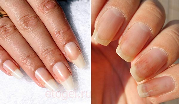 Онихолизис ногтей - причины