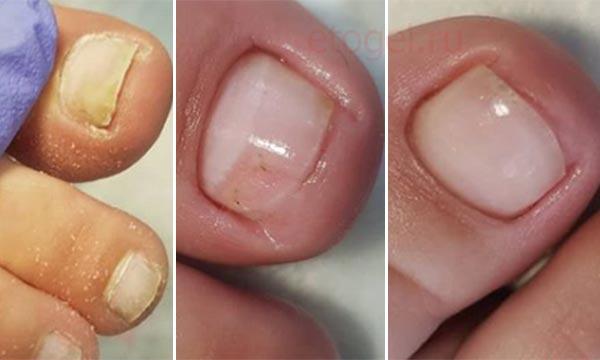 Протезирование ногтя с онихолизисом