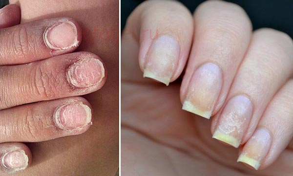 Тонкие ногти после гель лака