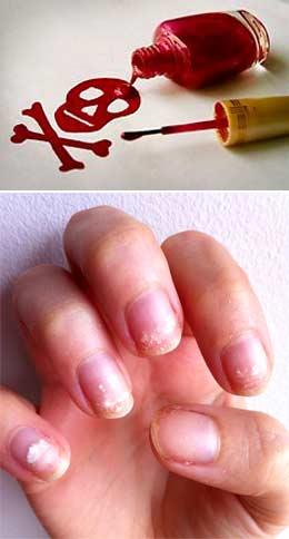 Гель-лак портит ногти