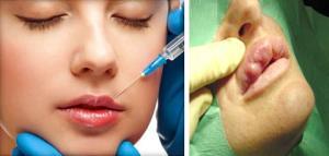 Удаление геля из губ