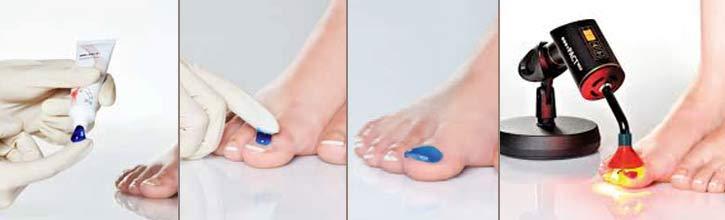 Лечение грибка ногтей аппаратом