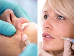 Коррекция губ гелем