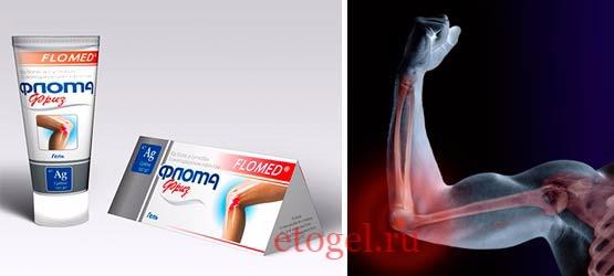 Обезболивающий гель для суставов