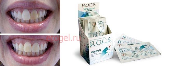 Инструкция К Гелю Для Зубов Rocs