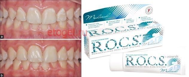 гель зубов инструкция реминерализирующий для