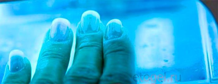 Аллергия на ультрафиолет и гель лак