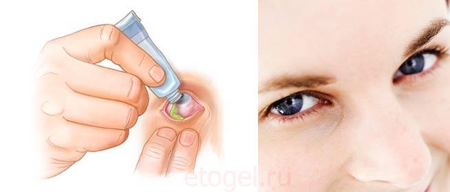 Глазной гель - важное