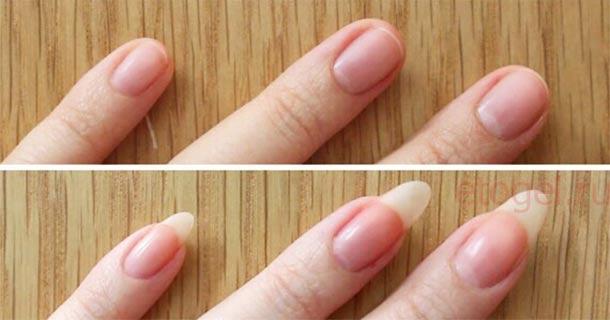 Что делать чтобы росли длинные ногти