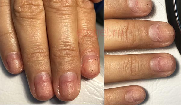 Кто лечит онихолизис ногтей
