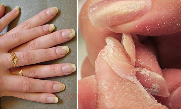 Отваливаются ногти после гель лака